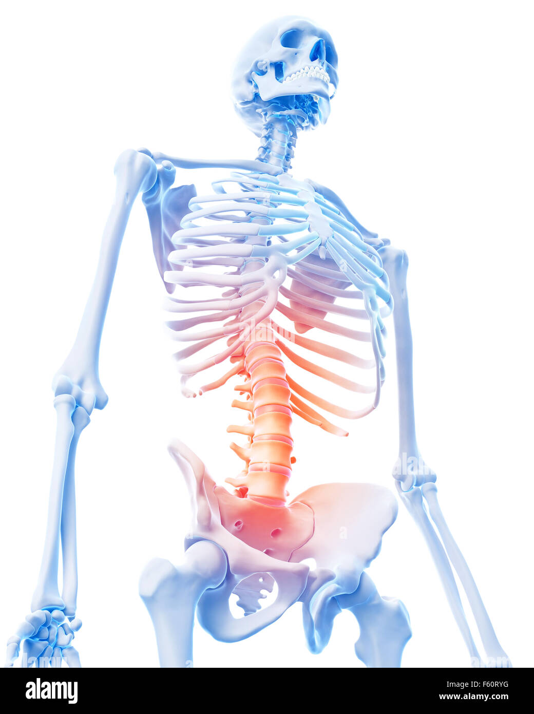 medical 3d illustration of a painful lumbar spine - Stock Image