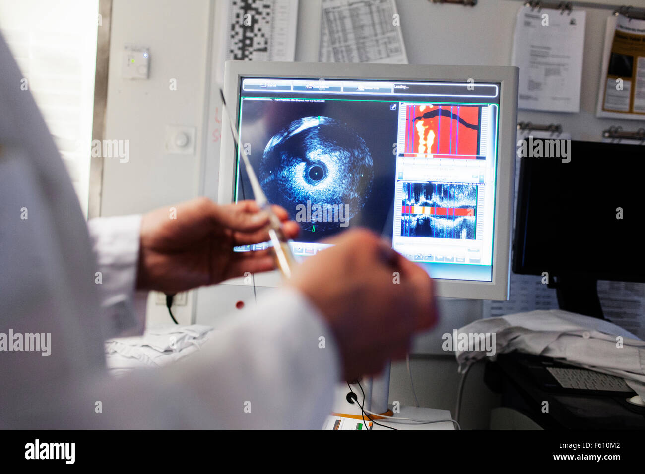 Doctor holding catheter in front of intravascular imaging system - Stock Image