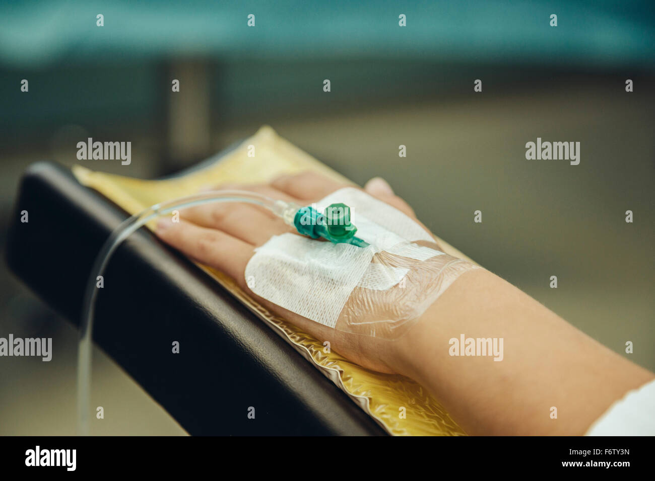 Hand with indwelling venous cannula in operating room - Stock Image