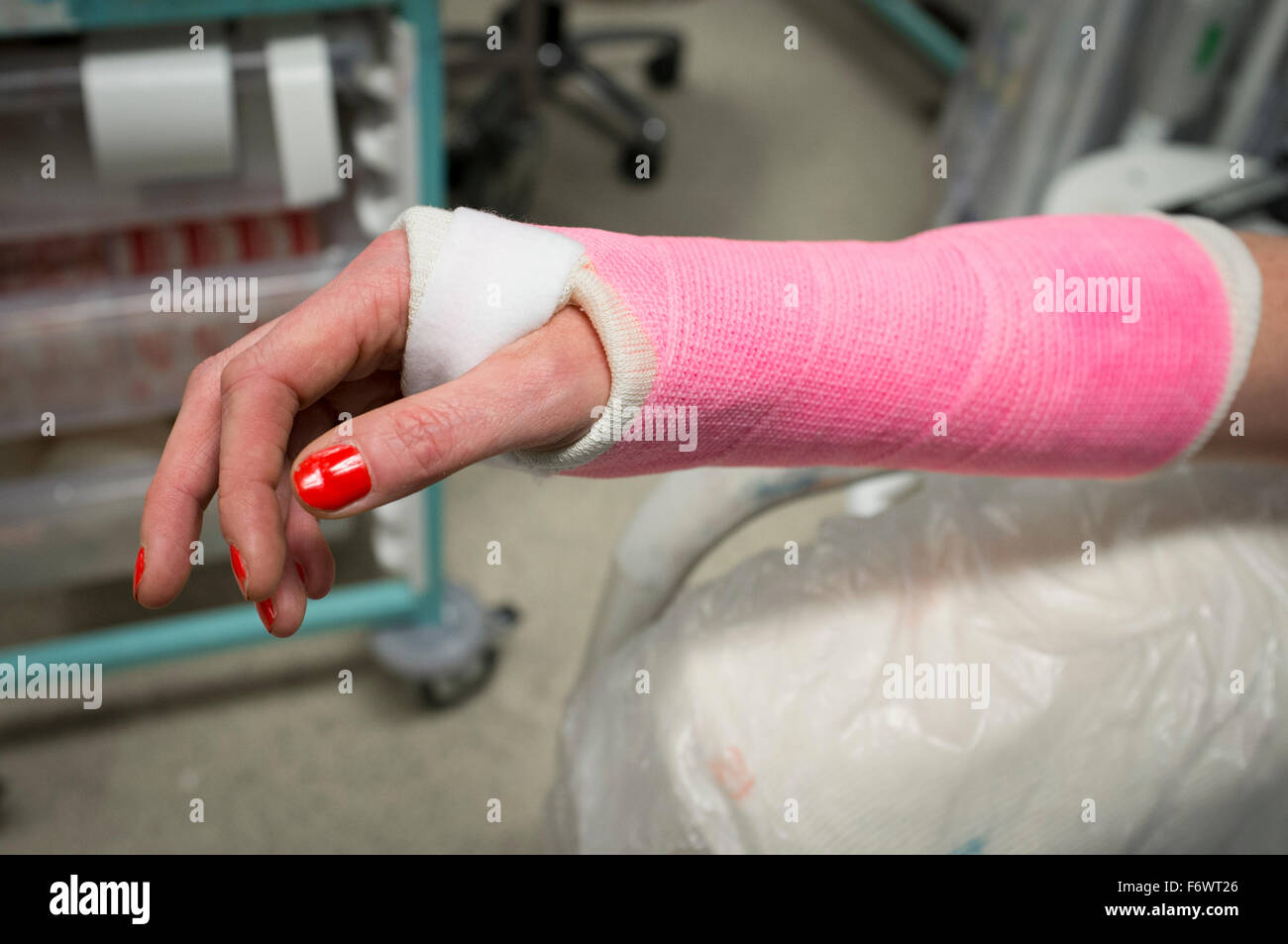 Freshly plastered lady's wrist in a pink plaster cast in a hospital accident and emergency department. - Stock Image