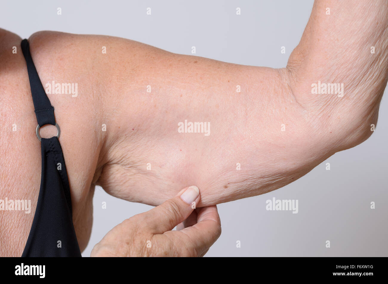 Elderly lady displaying the loose skin or flab due to ageing on her upper arm pinching it between her fingers, close - Stock Image