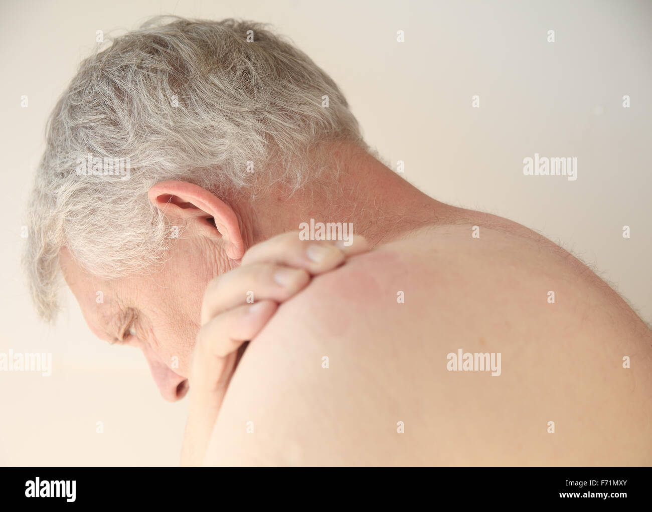 Older man with an itchy rash on his back - Stock Image