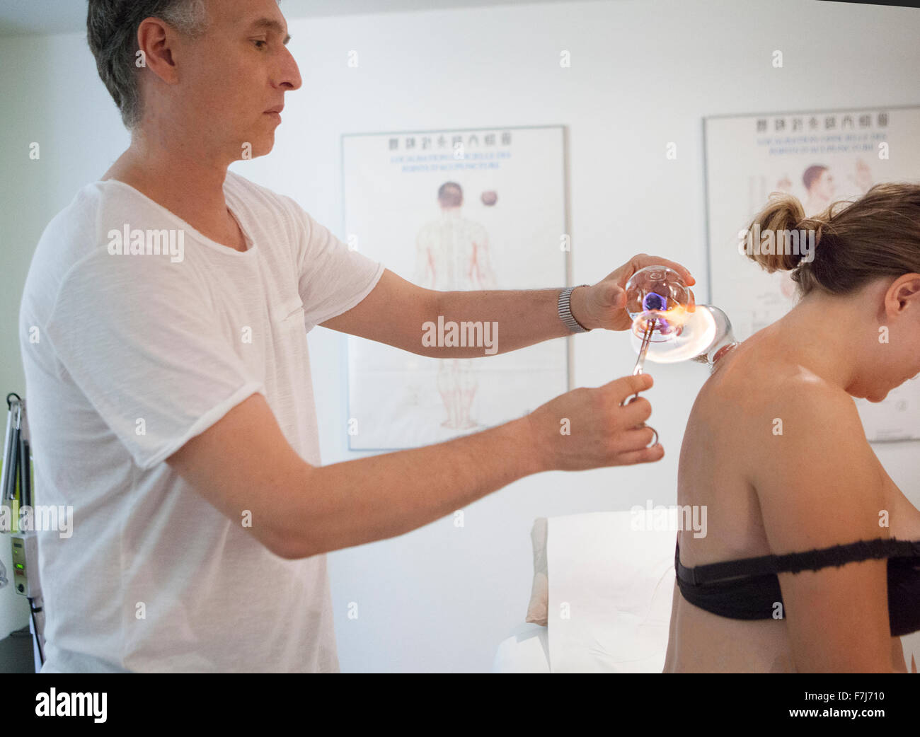 Reportage on a therapist who specialises in traditional Chinese medicine. Applying cupping-glasses massages connective - Stock Image