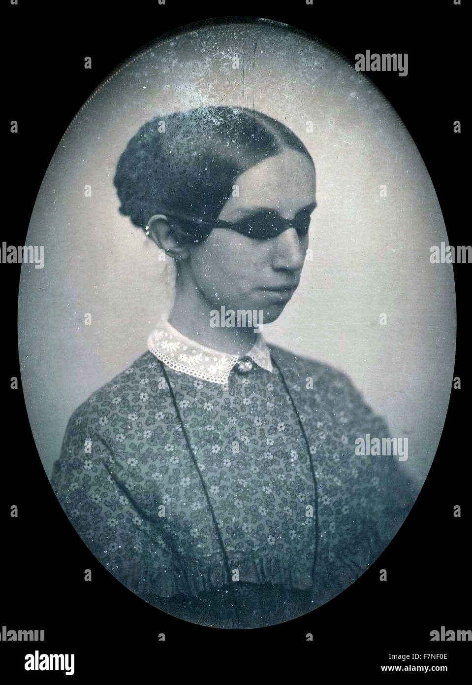 Photographic portrait of Laura Bridgman (1829-1889) First deaf-blind American child to gain a significant education - Stock Image