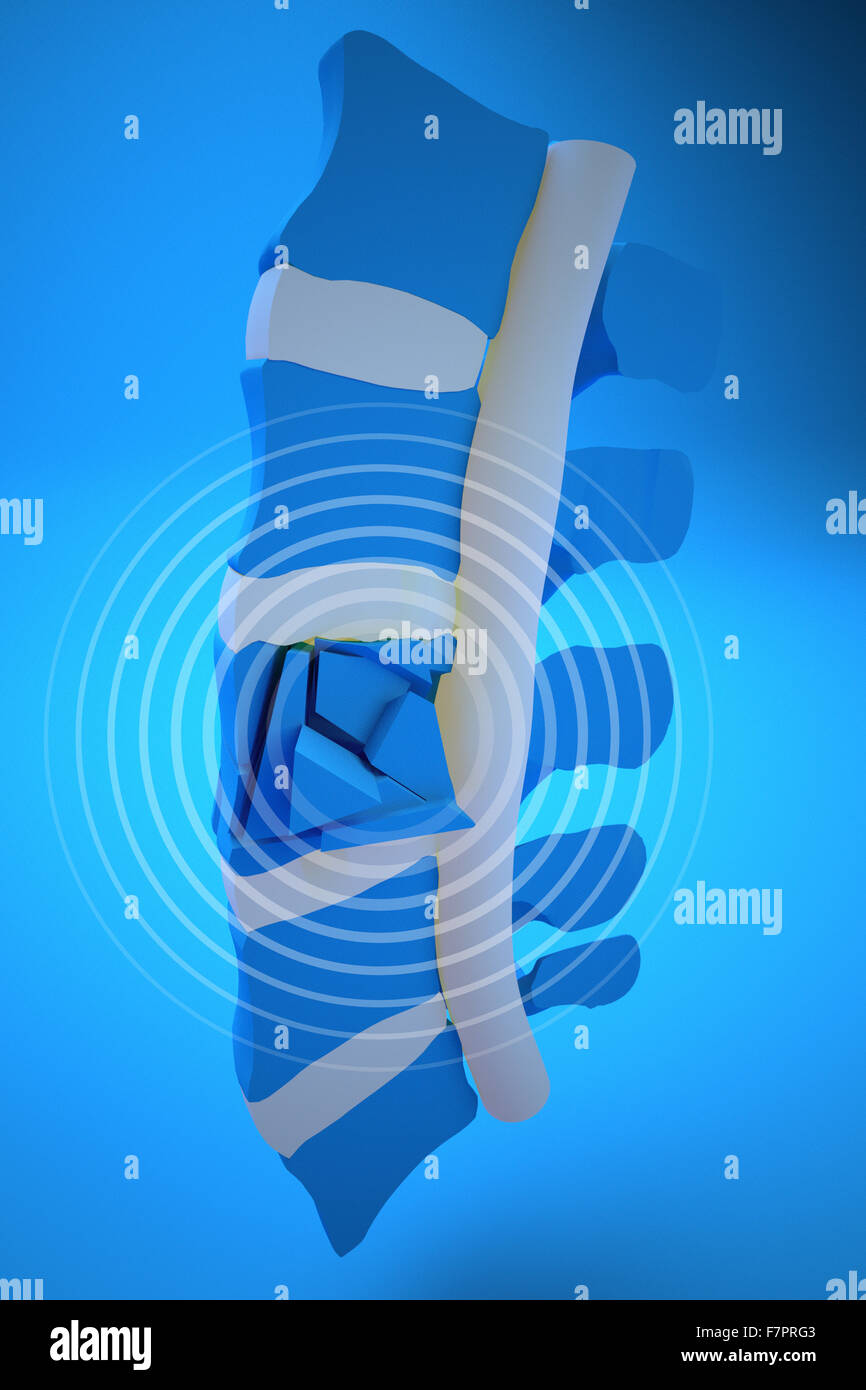 Spine, marrow, traumatic fractures vertebral, burst fracture. Spine section - Stock Image