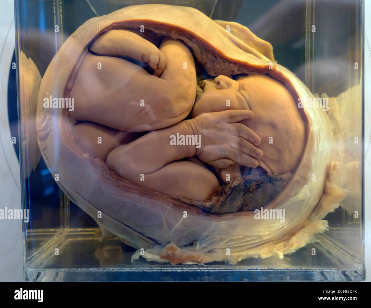 A fully developed foetus in the womb preserved in formalin jar. Medical Museion, Copenhagen, Denmark. - Stock Image