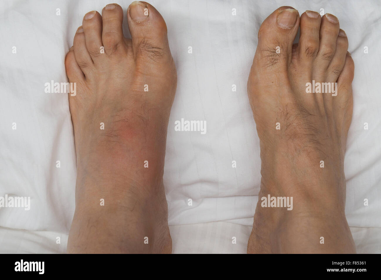 A pair of feet with the left foot inflamed and swollen with gout. - Stock Image