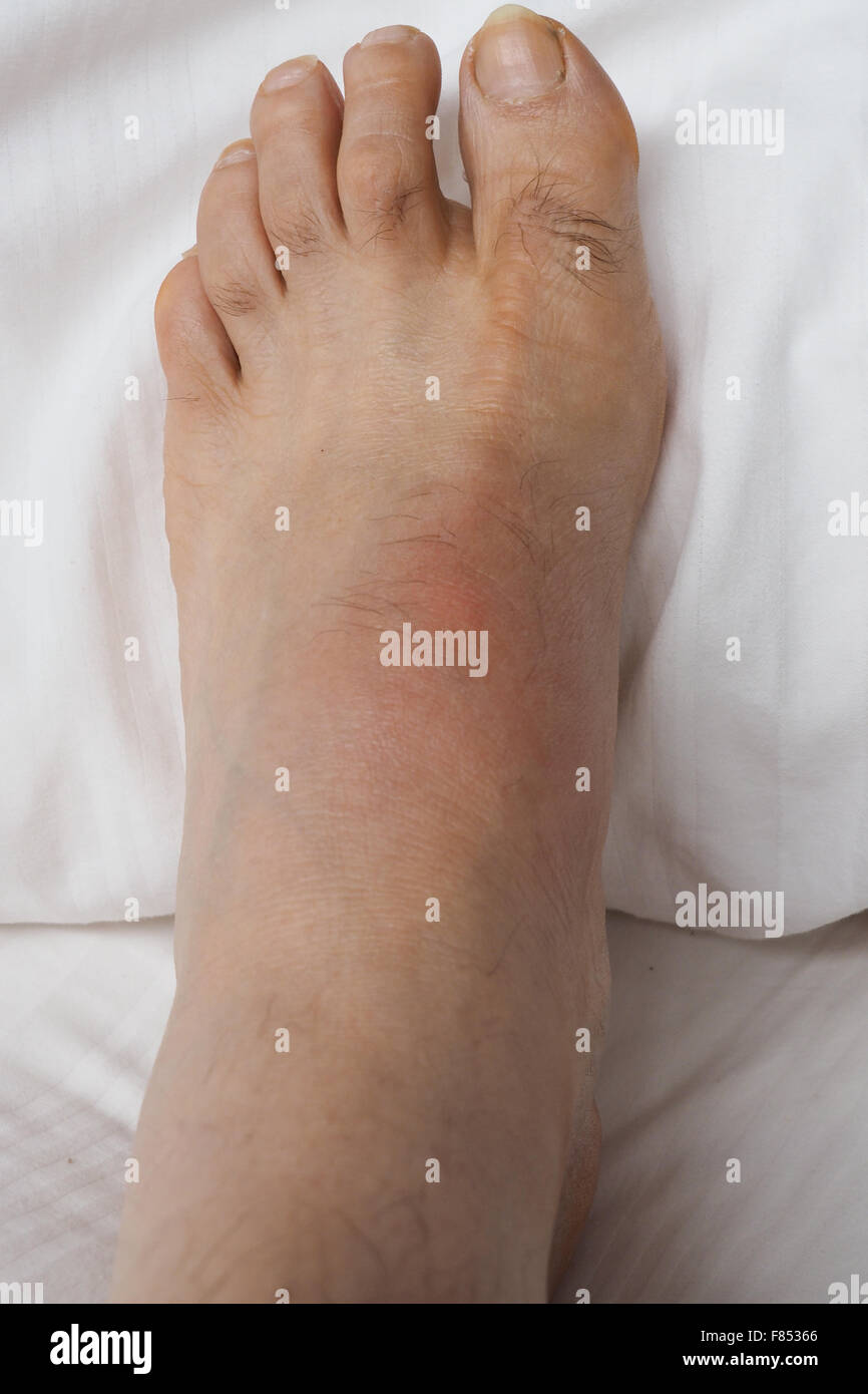 A swollen left foot with gout. - Stock Image