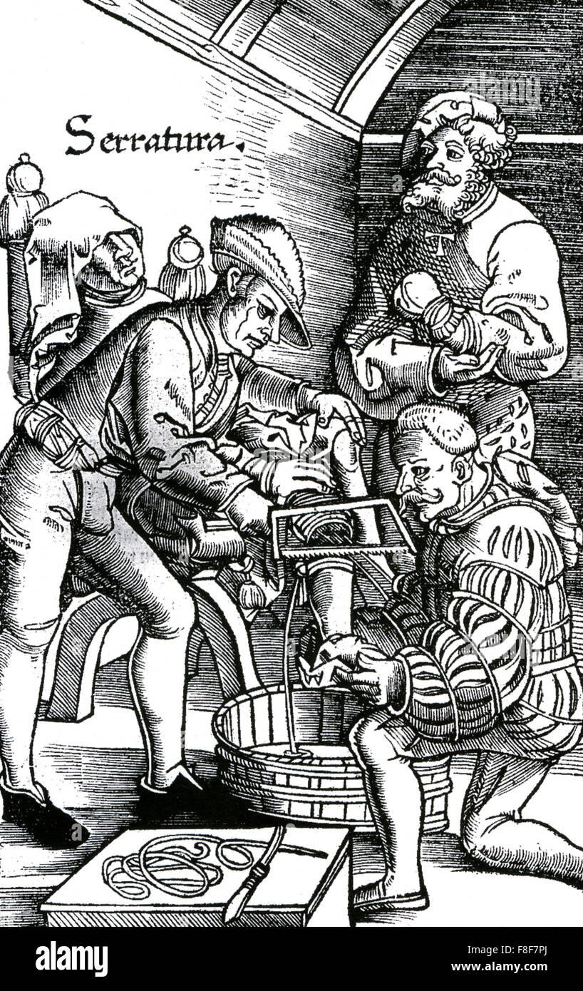 HANS von GERSDORFF (c 1455-1529) Austrian surgeon. An amputation from his 1540 book Feldbuch der Wundartzney - Stock Image