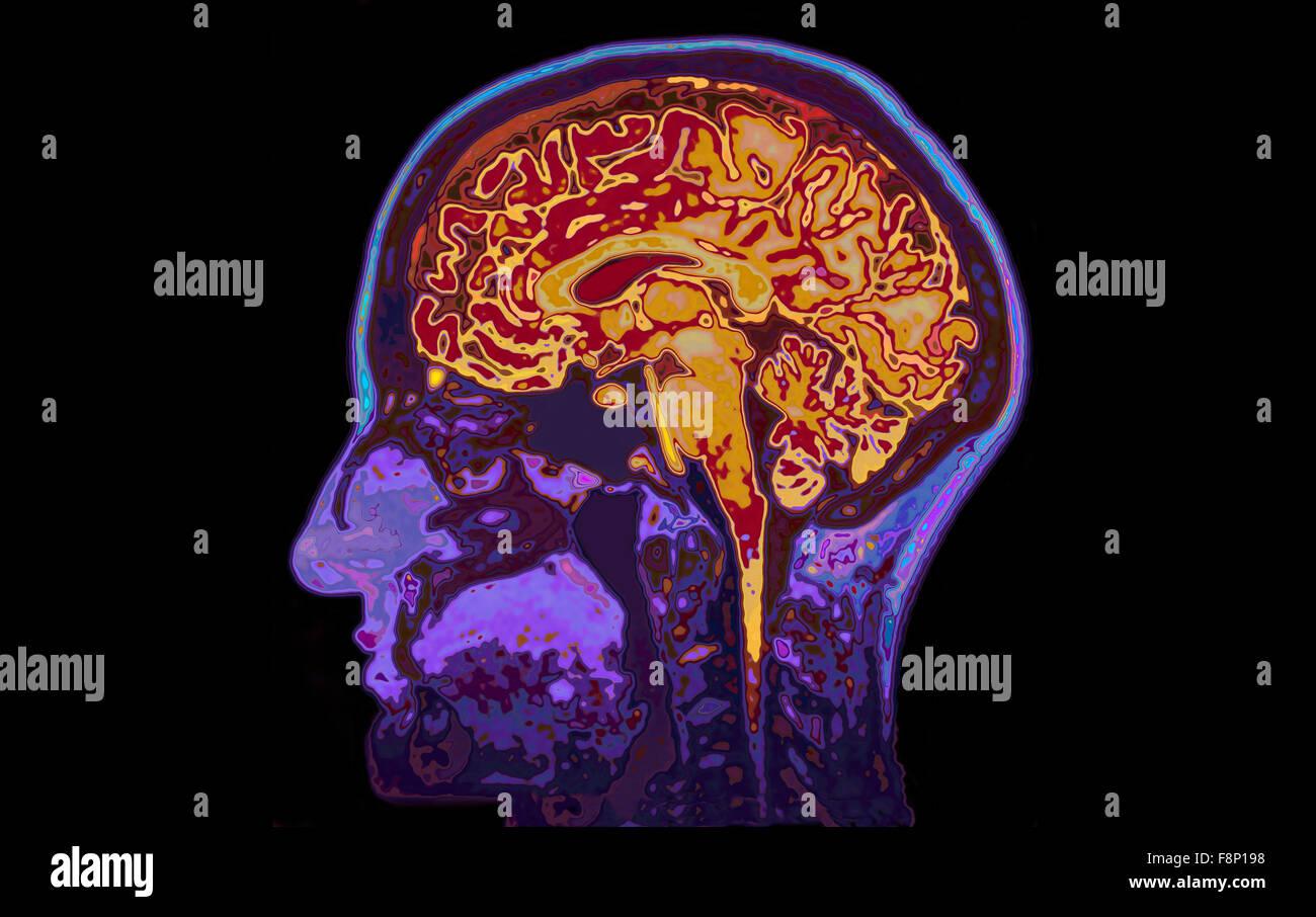MRI Image Of Head Showing Brain - Stock Image