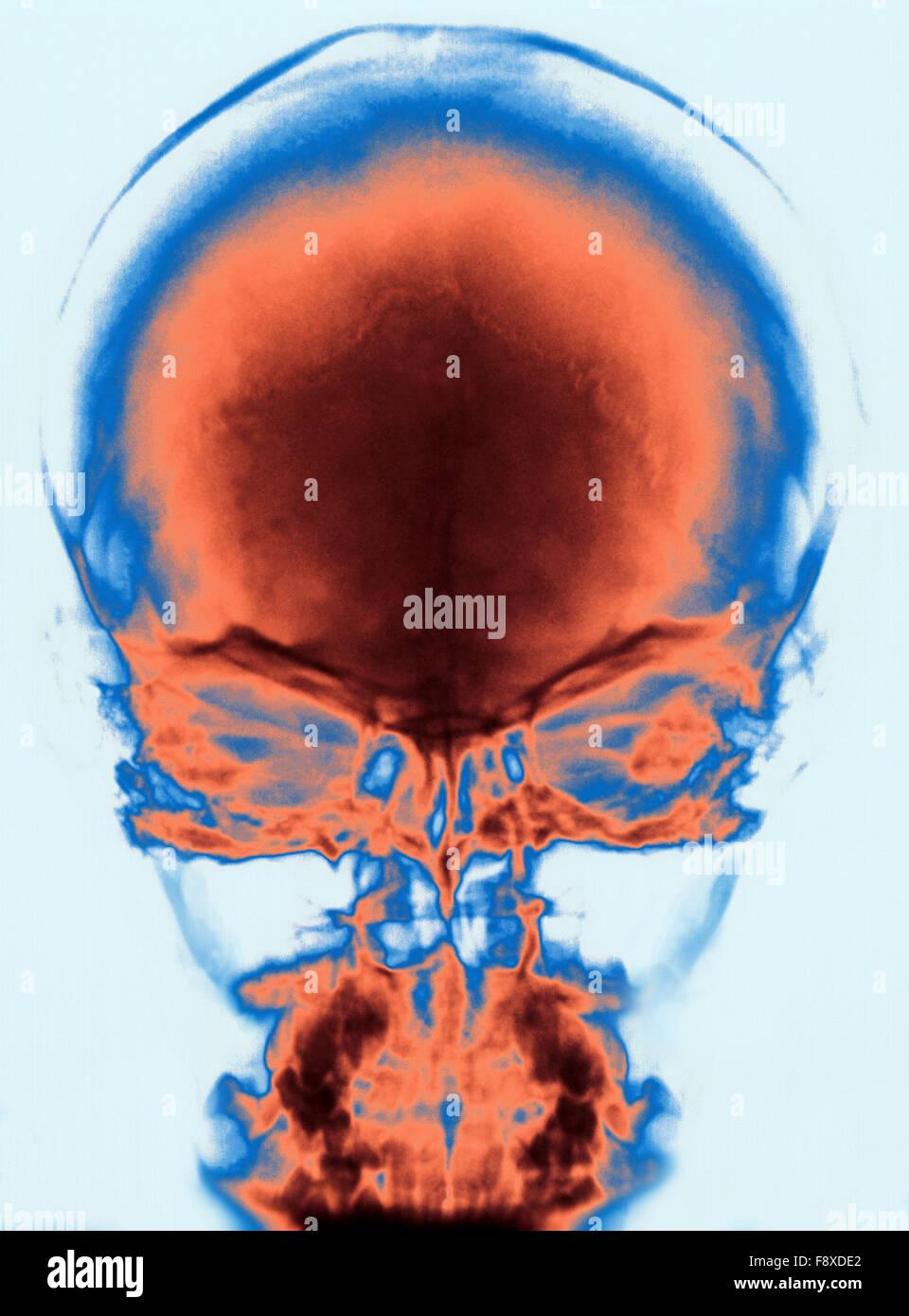 X Ray of Human Skull - Stock Image