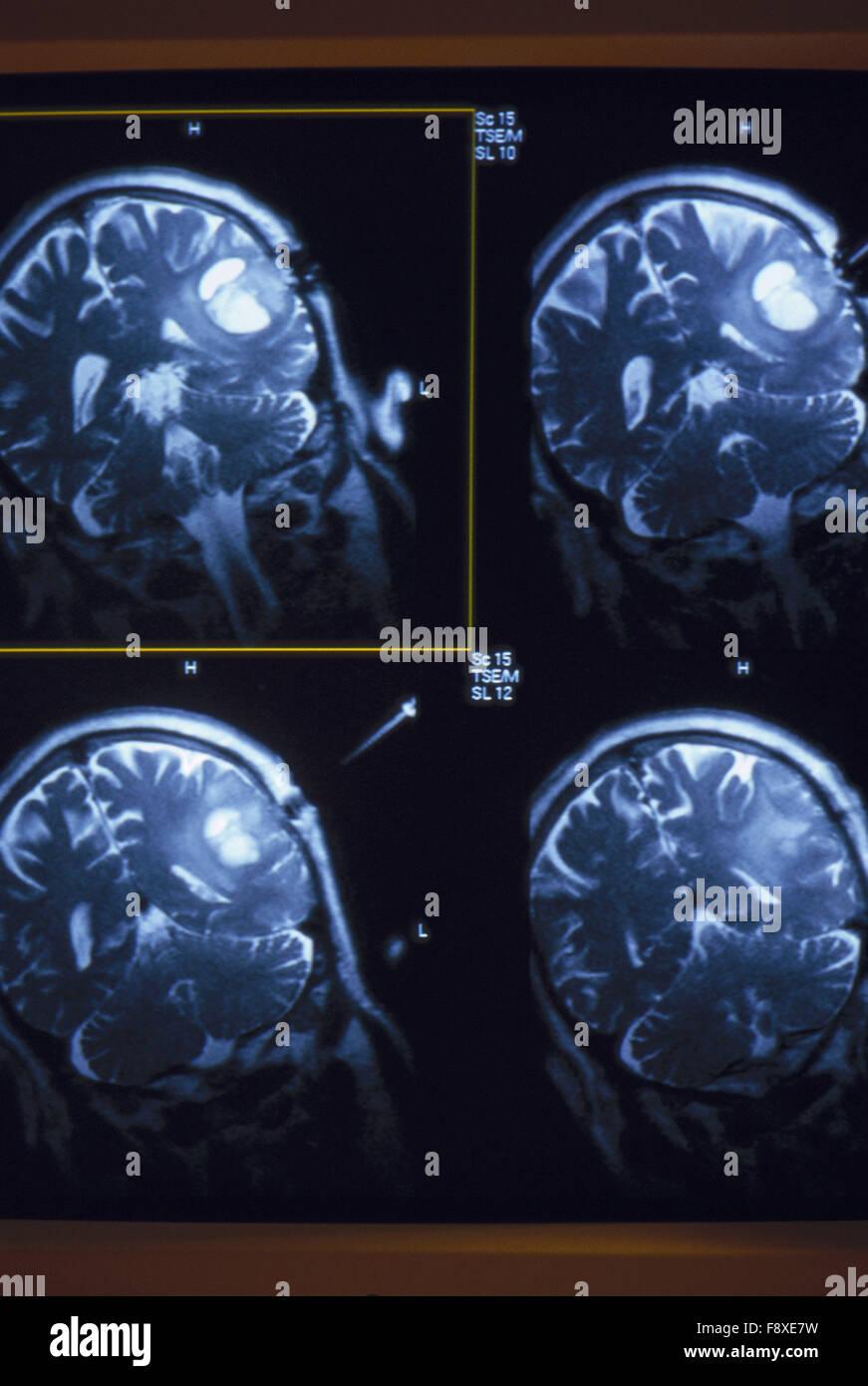 MRI Scans - Stock Image