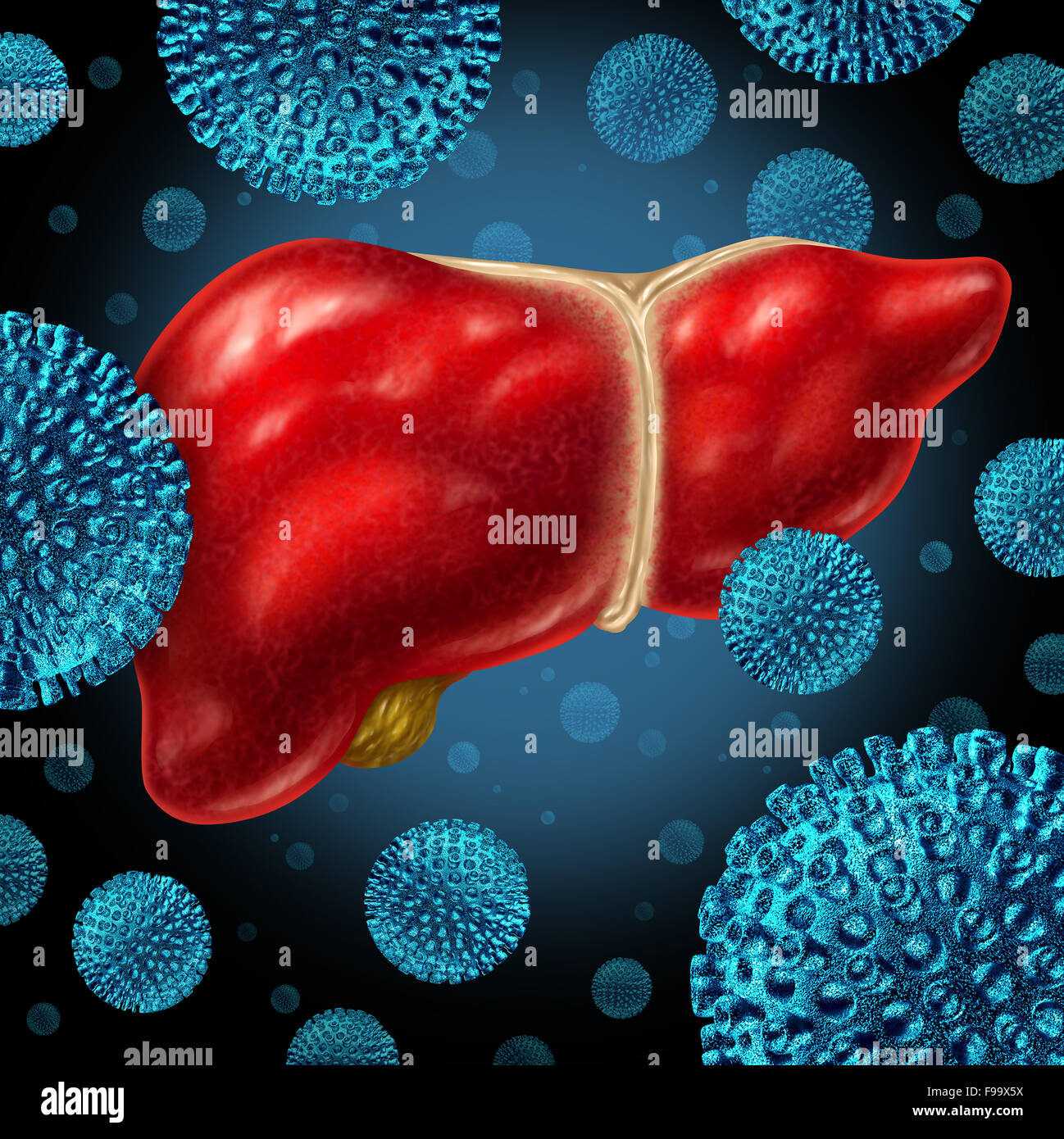 Liver infection as a human liver infected by the hepatitis virus as a medical concept for the viral disease causing - Stock Image