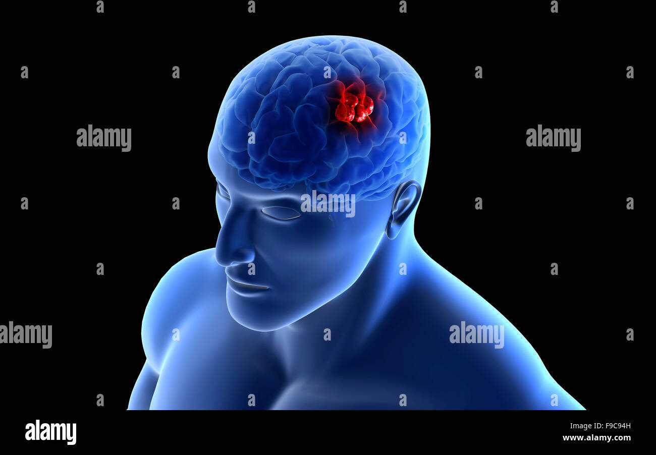 Conceptual image of a tumor in human brain. - Stock Image