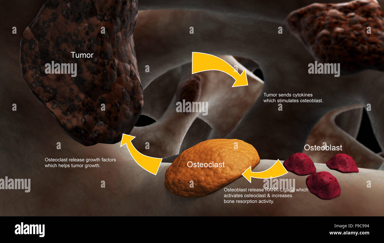 Conceptual image illustrating the process of bone metastasis. Stock Photo