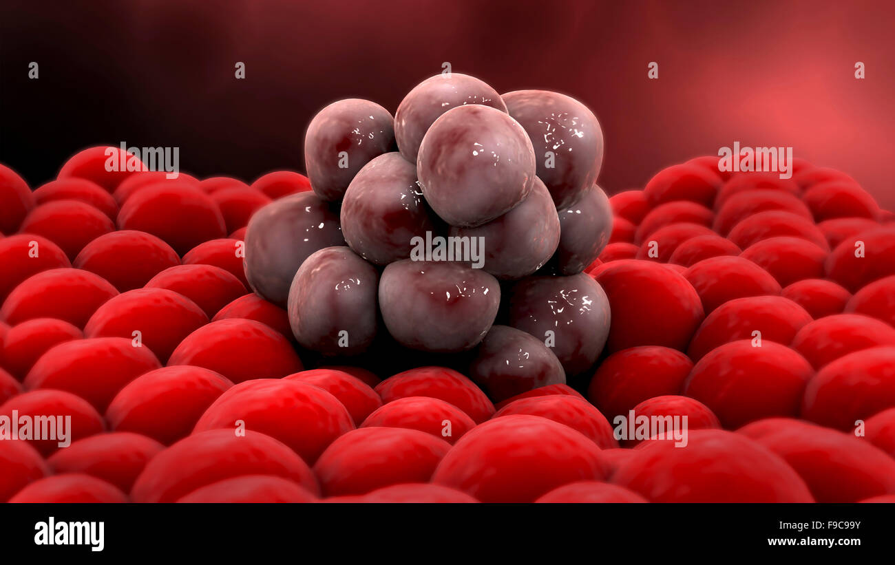 Microscopic view of a tumor. Stock Photo