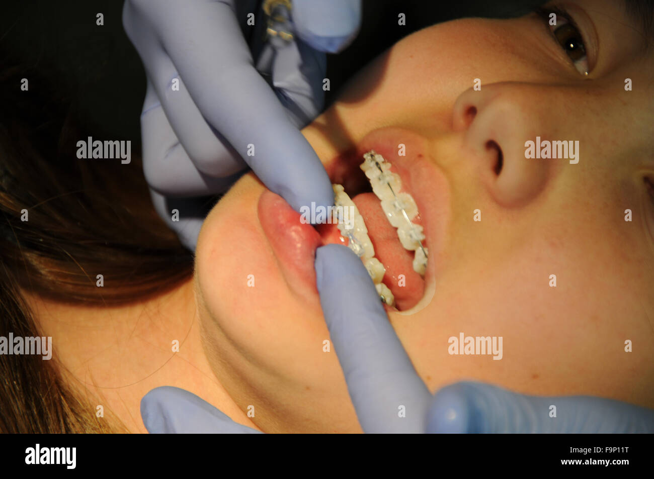 An orthodontist is a type of dentist who specializes in straightening crooked teeth. Adjusting braces and checking - Stock Image