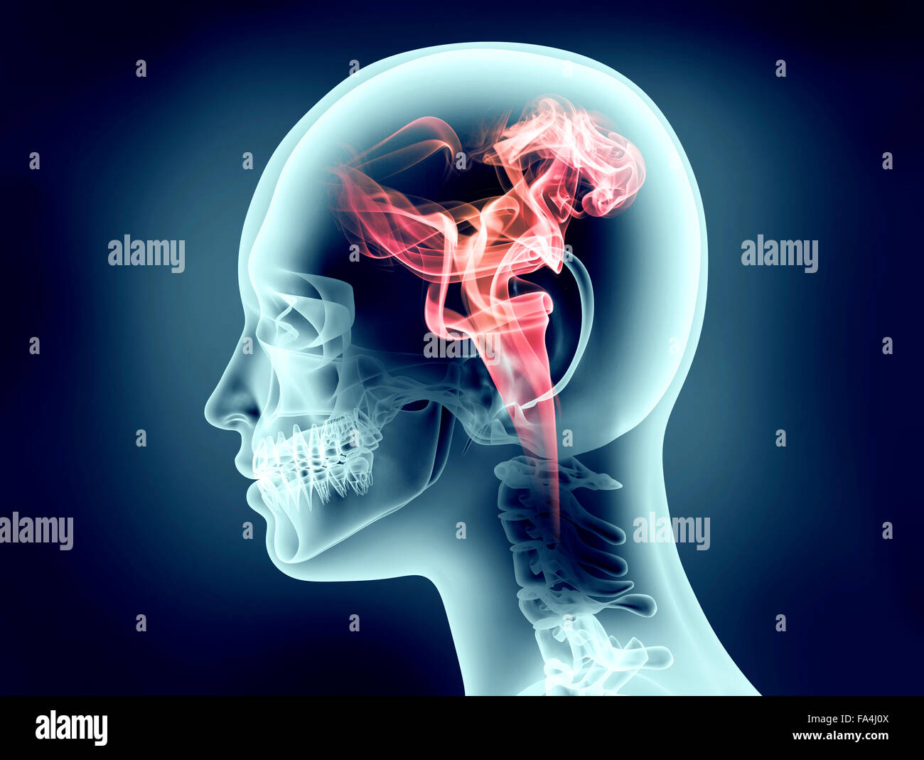 x-ray image of human head with flames - Stock Image