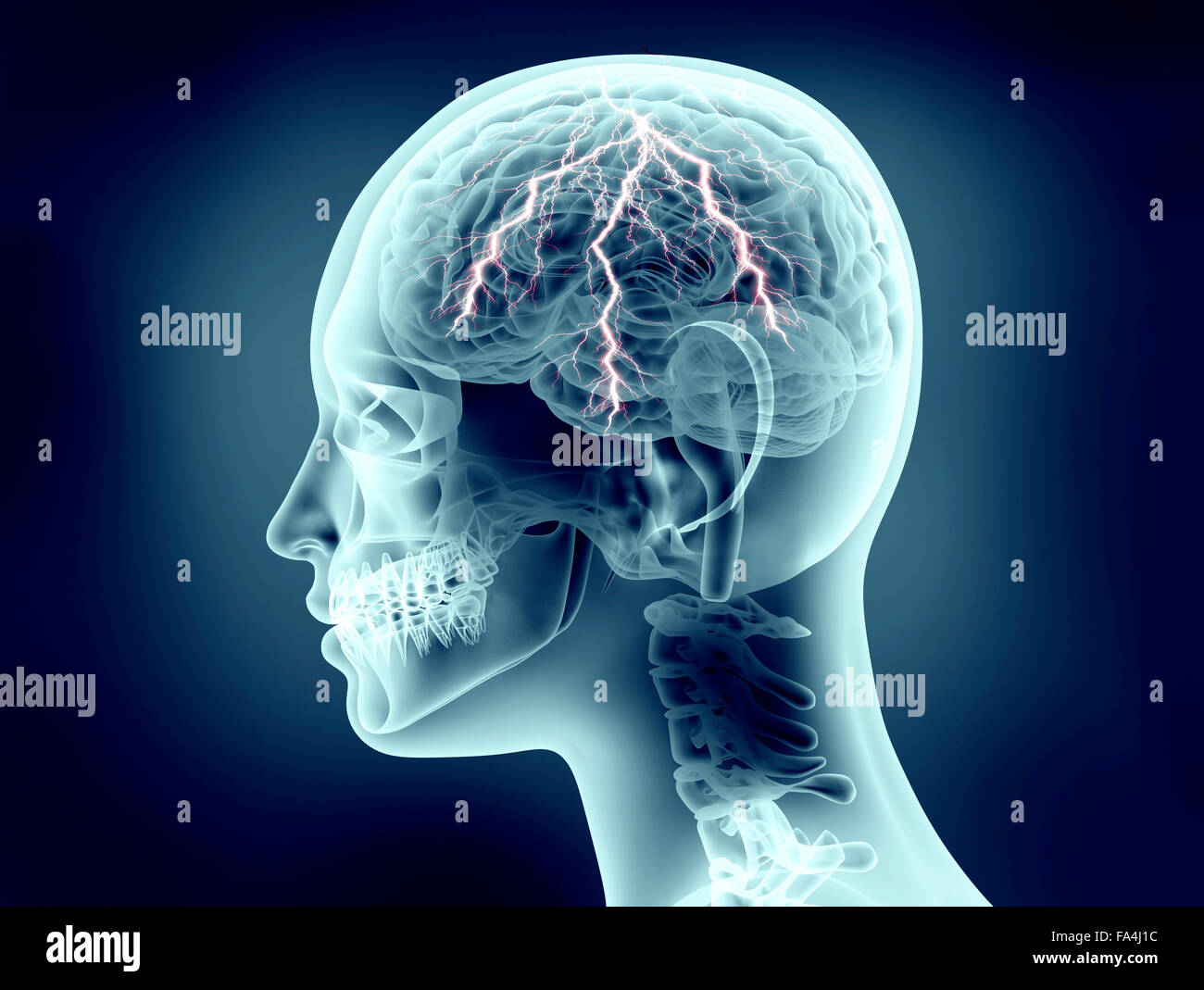 x-ray image of human head with lightning - Stock Image