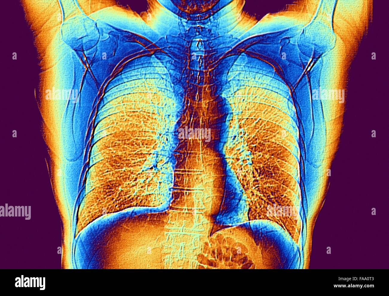 Heart and lungs. False-colour computed tomography (CT) scan of the ...
