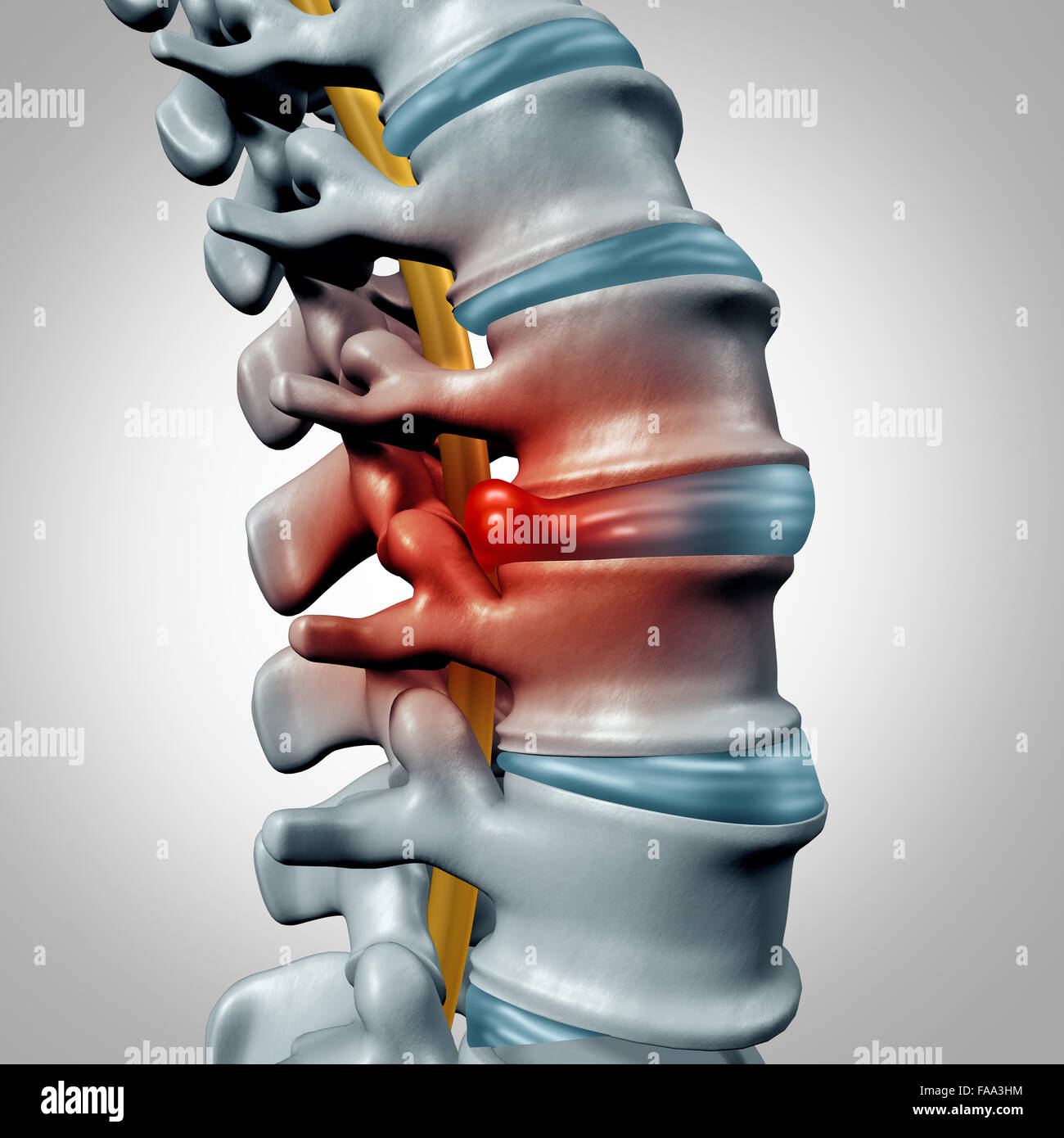 Herniated disk concept and spine pain diagnostic as a human spinal system symbol as medical health problem and anatomy - Stock Image