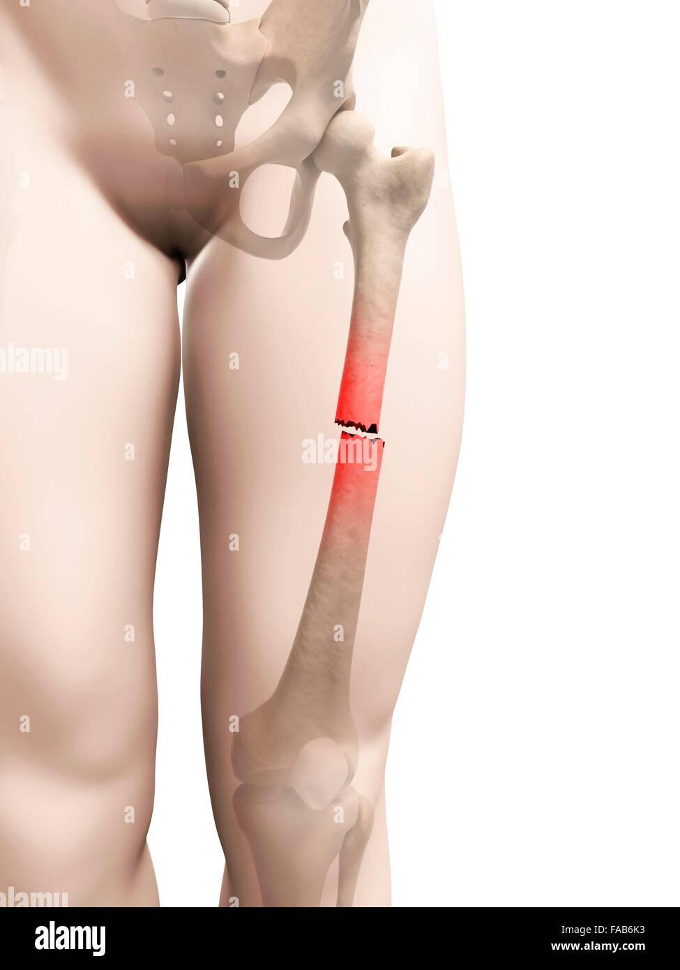 Broken upper leg bone, computer illustration Stock Photo: 92445111 ...