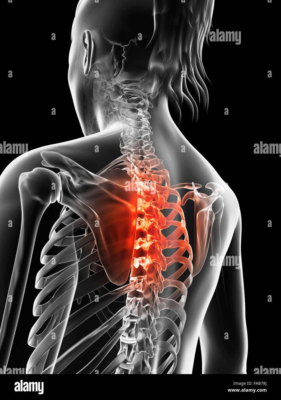 Human Thoracic Spine Pain Stock Photos Human Thoracic Spine Pain