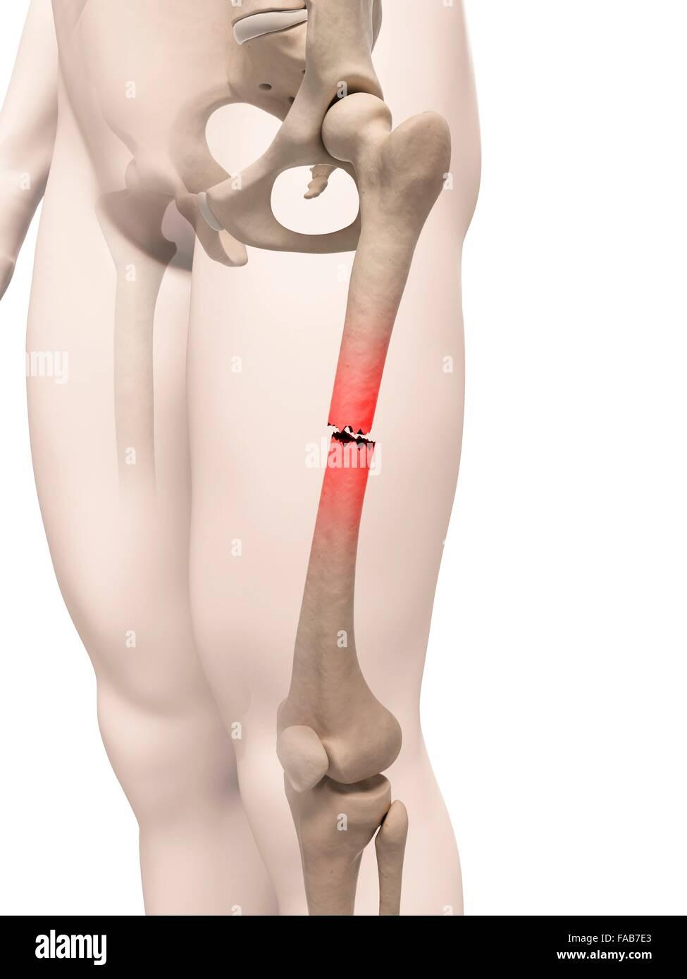 Broken Upper Leg Bone Stock Photos & Broken Upper Leg Bone Stock ...