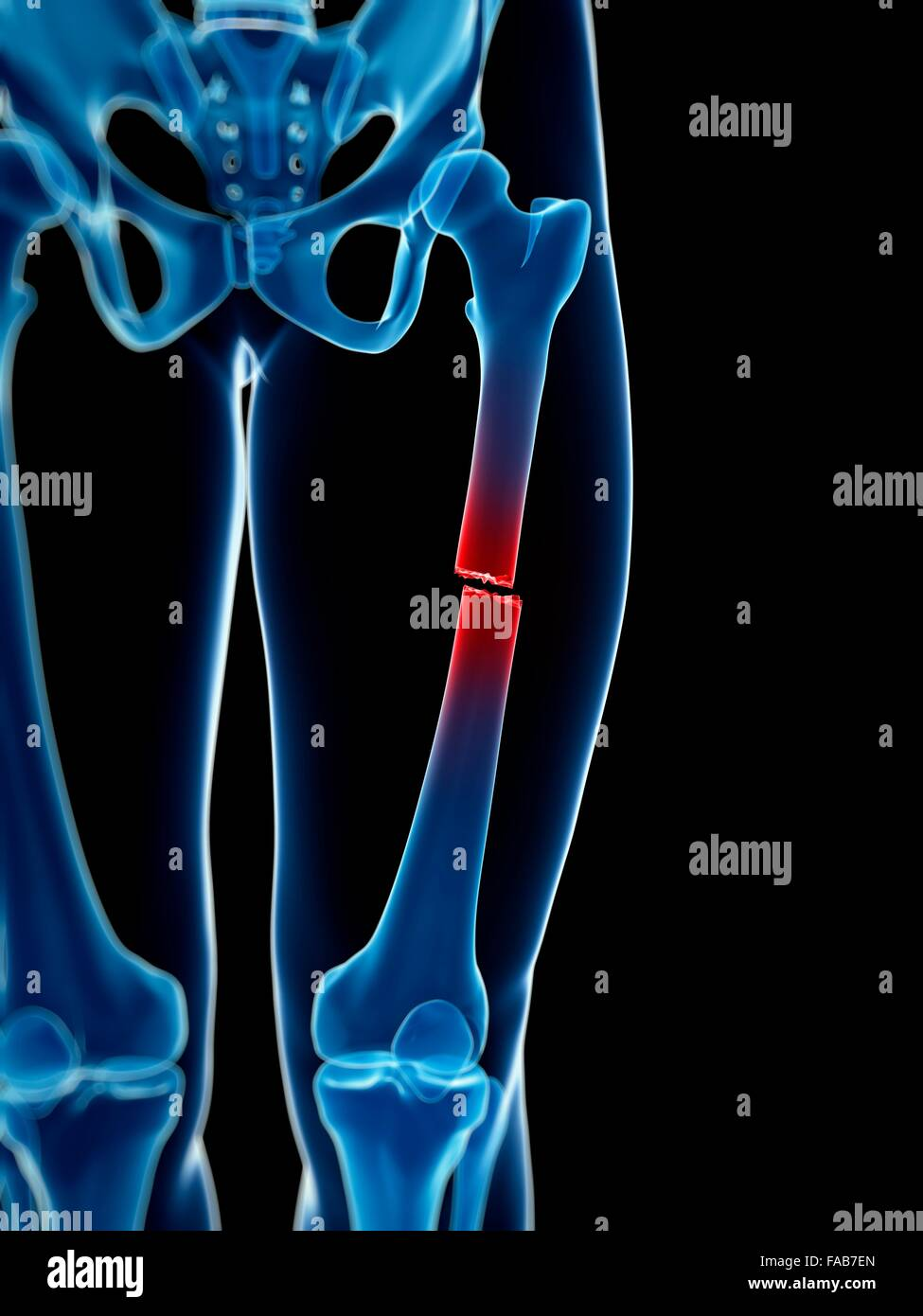 Broken upper leg bone, computer illustration Stock Photo: 92445773 ...