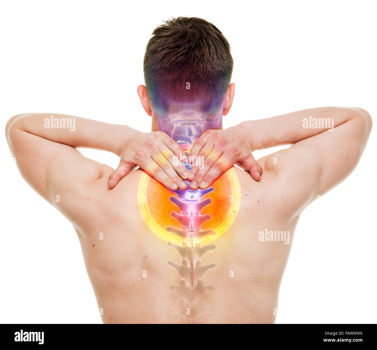 NECK Pain - Male Hurt Cervical Spine isolated on white - REAL ...