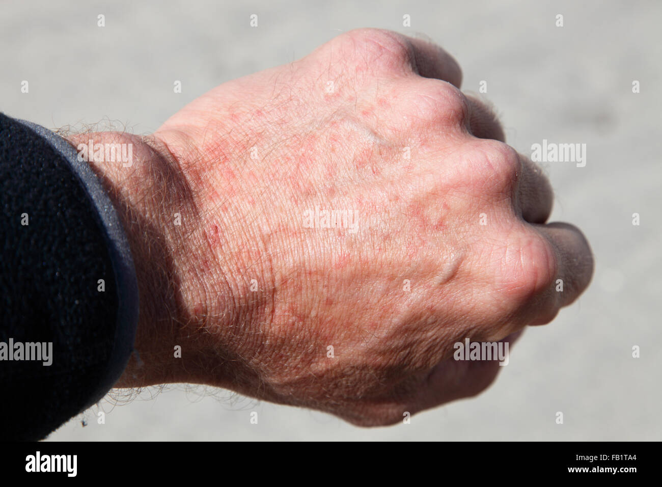 insect bites stock photos amp insect bites stock images alamy