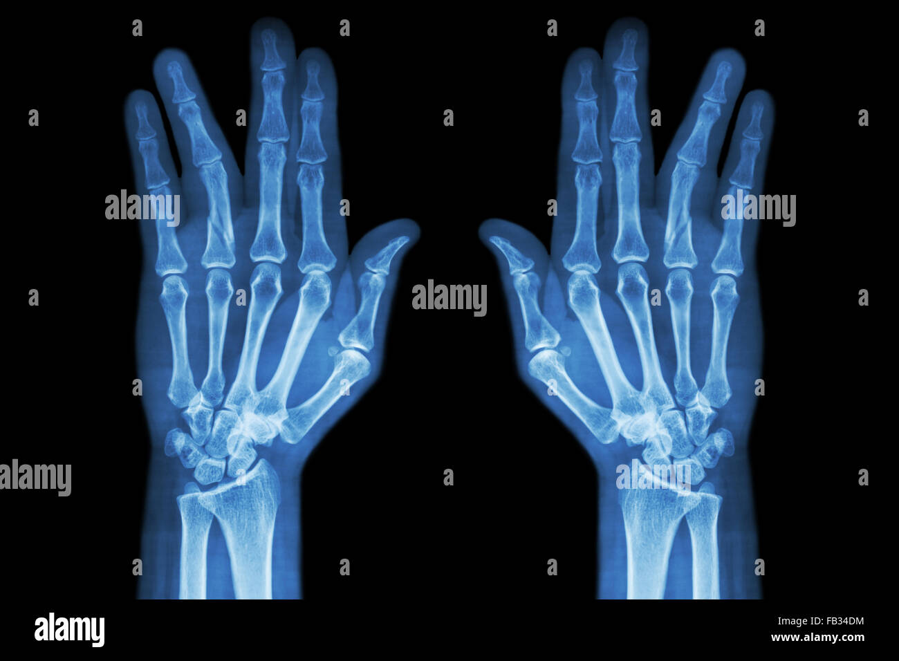 Hand Finger Injury Medical X Ray Stock Photos & Hand Finger Injury ...