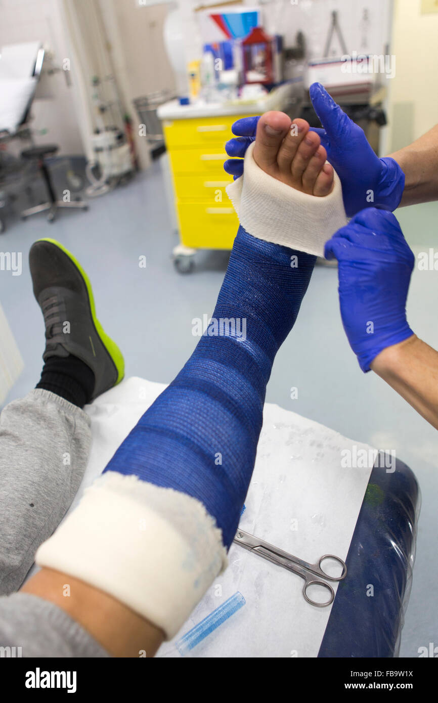 Plaster Cast On A Fractured Leg Stock Photo 93030278 Alamy