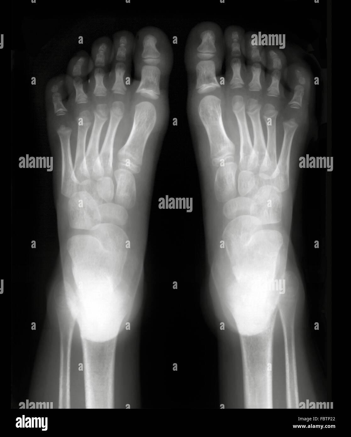 Foot Xray Stock Photos & Foot Xray Stock Images - Alamy