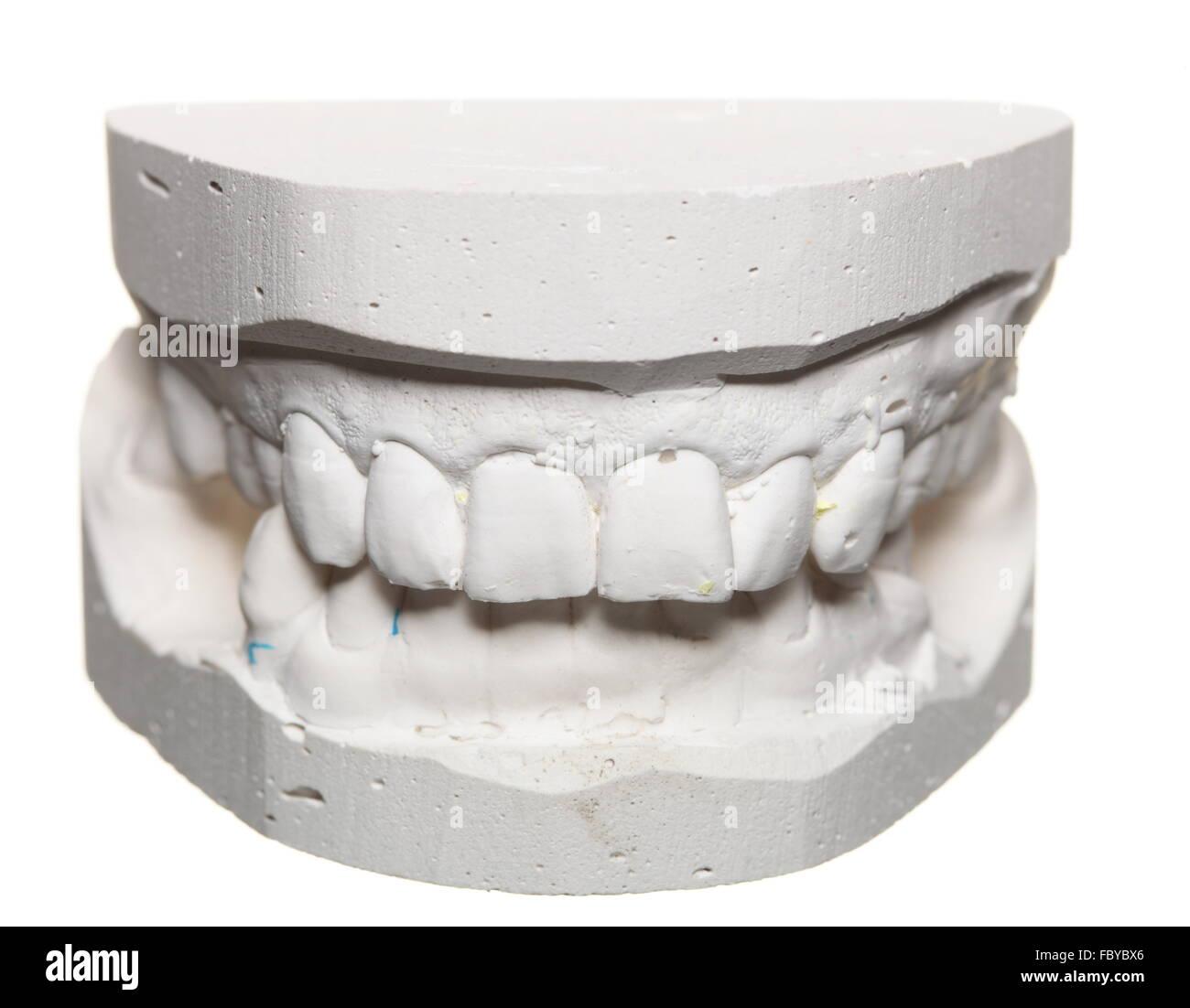 Dental Gypsum Plaster : Dental gypsum model mould of teeth in plaster stock photo