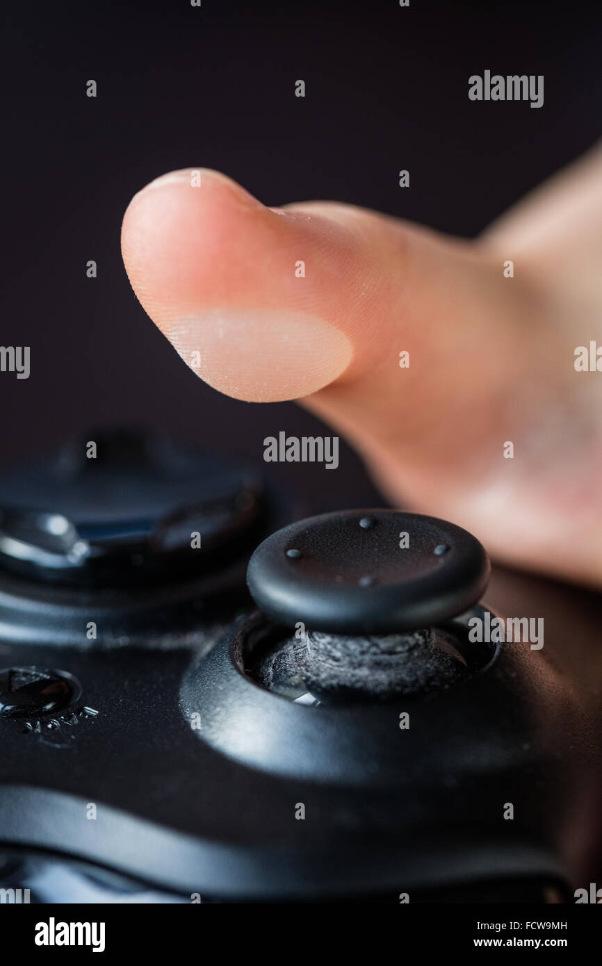 Friction blister on the left thumb of a 6 year old caucasian boy. Caused by prolonged use of a computer gaming controller, - Stock Image