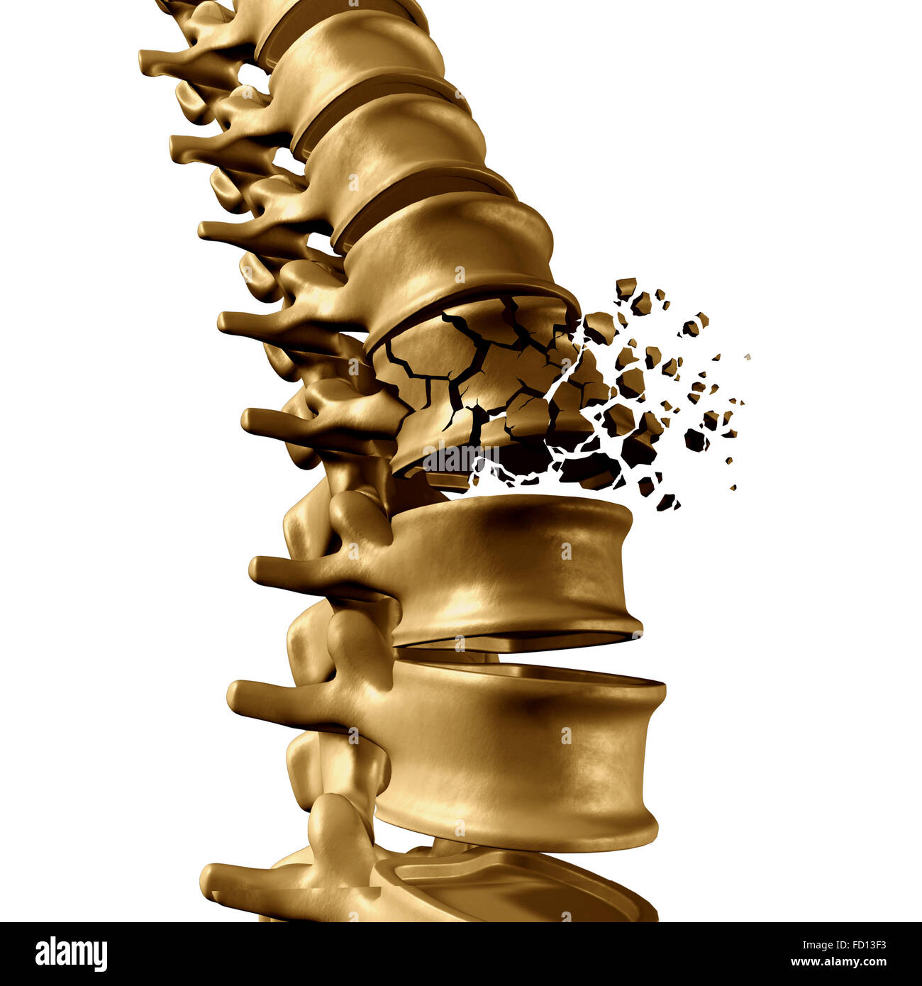 Spinal Fracture and traumatic vertebral injury medical concept as a human anatomy spinal column with a broken burst - Stock Image