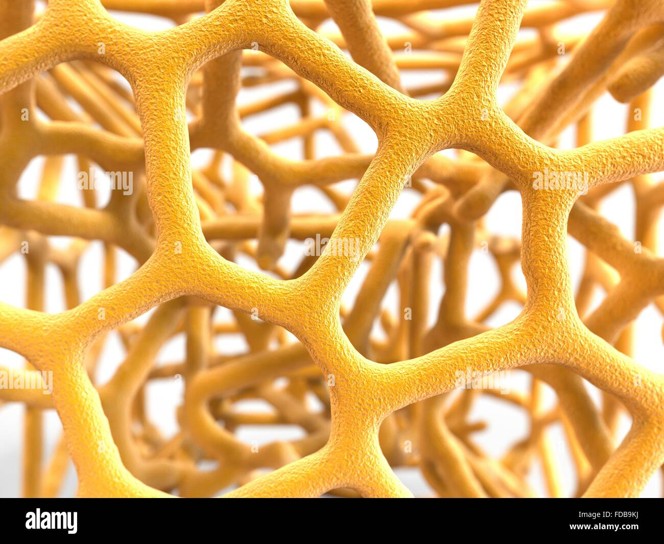 Osteoporosis. Computer artwork of the trabeculae in the cancellous (spongy) bone tissue affected by osteoporosis. - Stock Image