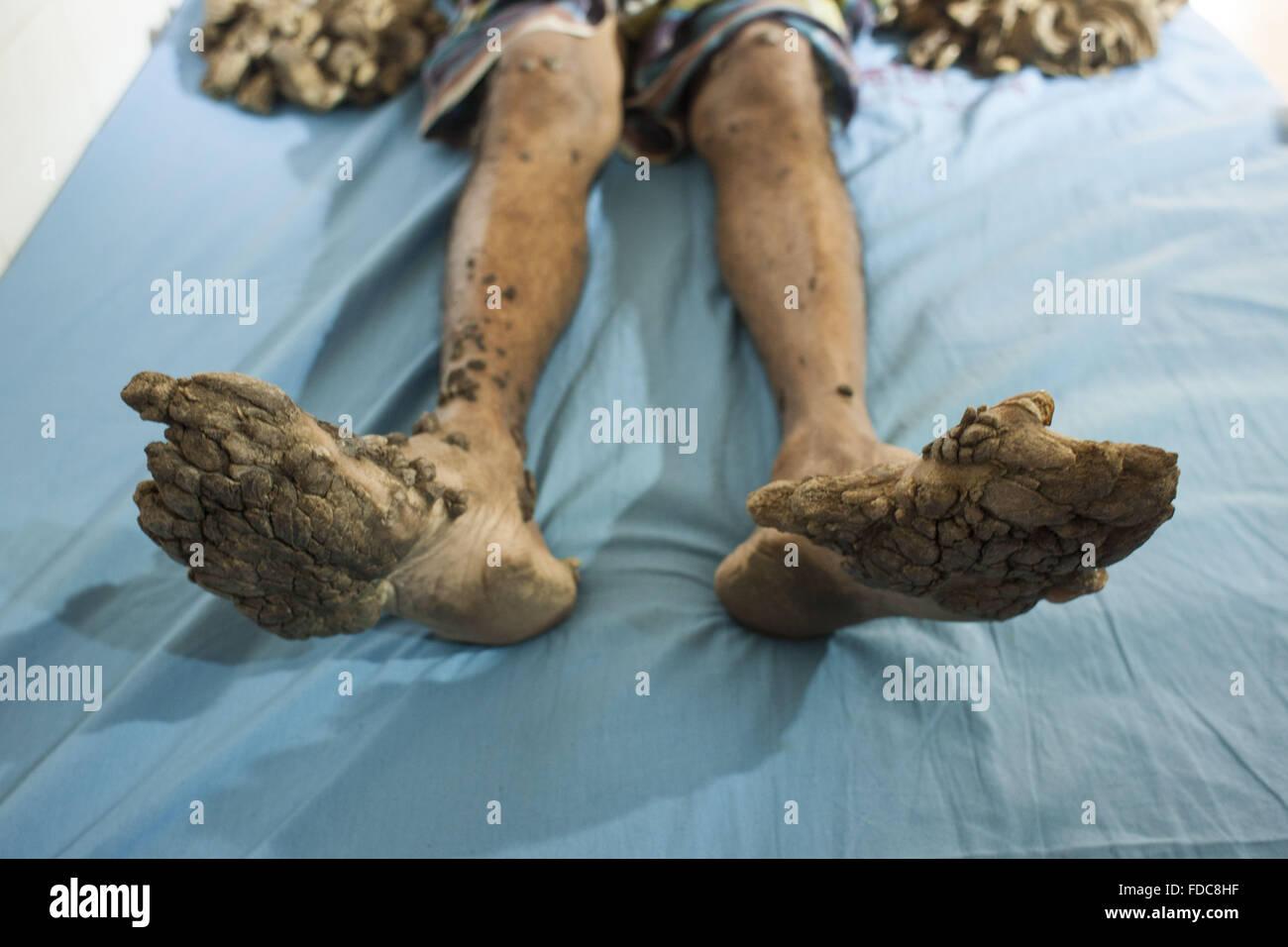 Dhaka bangladesh 30th jan 2016 bangladeshi man abul bazadar 25 bangladeshi man abul bazadar 25 has been suffering from a rare skin disease called human pappiloma virus since 10 years his skin appears to have tree publicscrutiny Choice Image