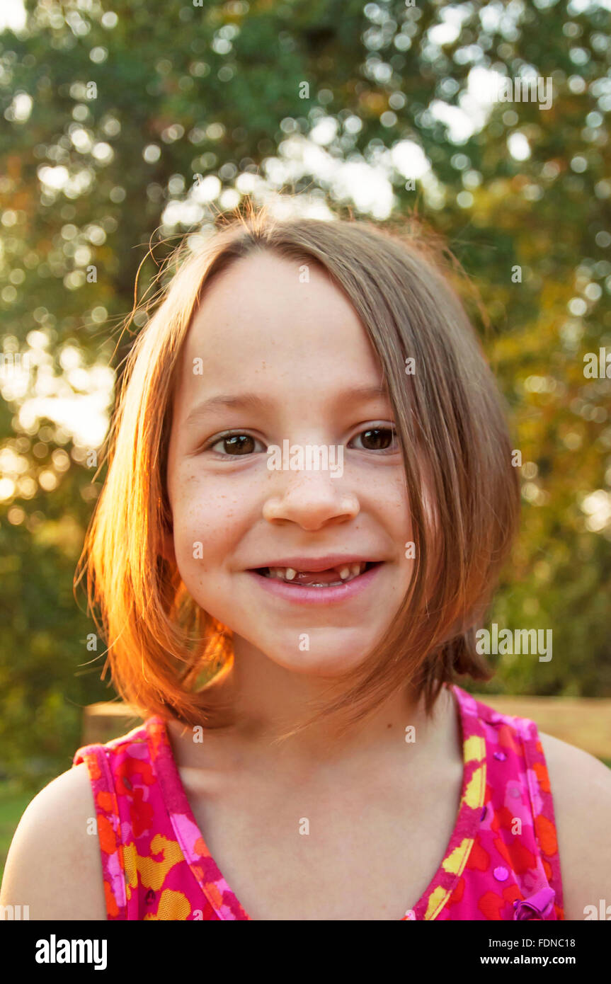 Girl smiles with front teeth missing - Stock Image