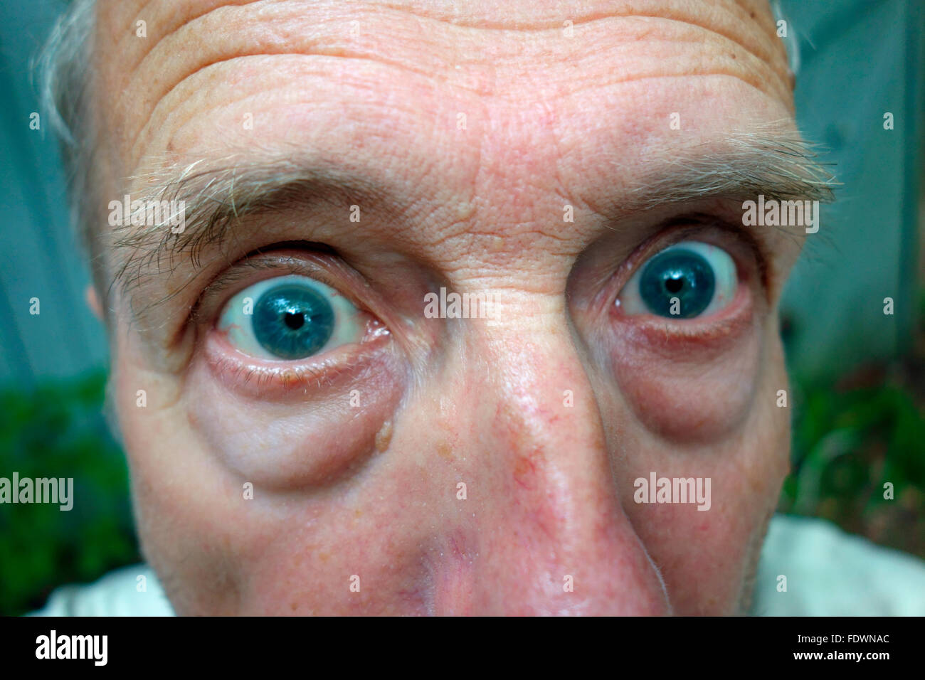 A funny man's face with bulging eyes - Stock Image