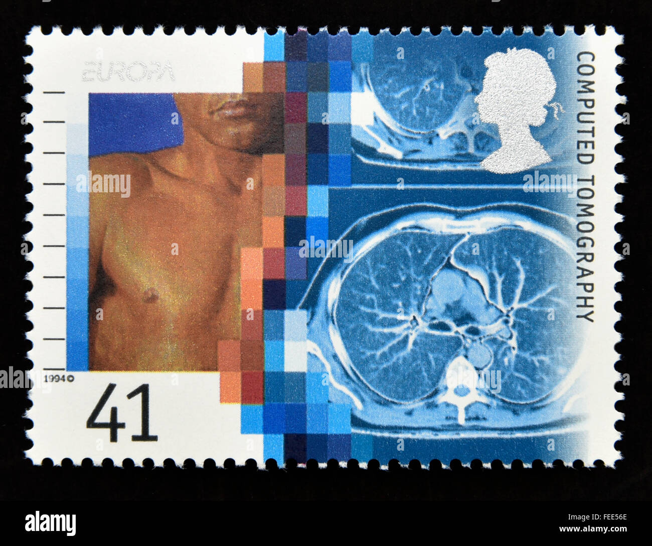 Postage stamp. Great Britain. Queen Elizabeth II. 1994. Europa. Medical Discoveries. Computed Tomography. 41p. - Stock Image