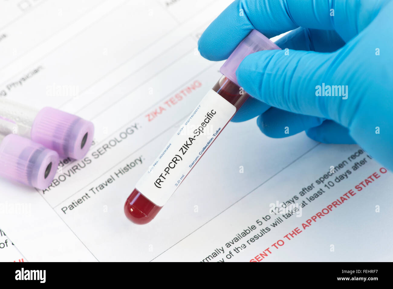 Zika virus blood analysis collection tube with virology lab request.  Labels, document done by photographer and - Stock Image