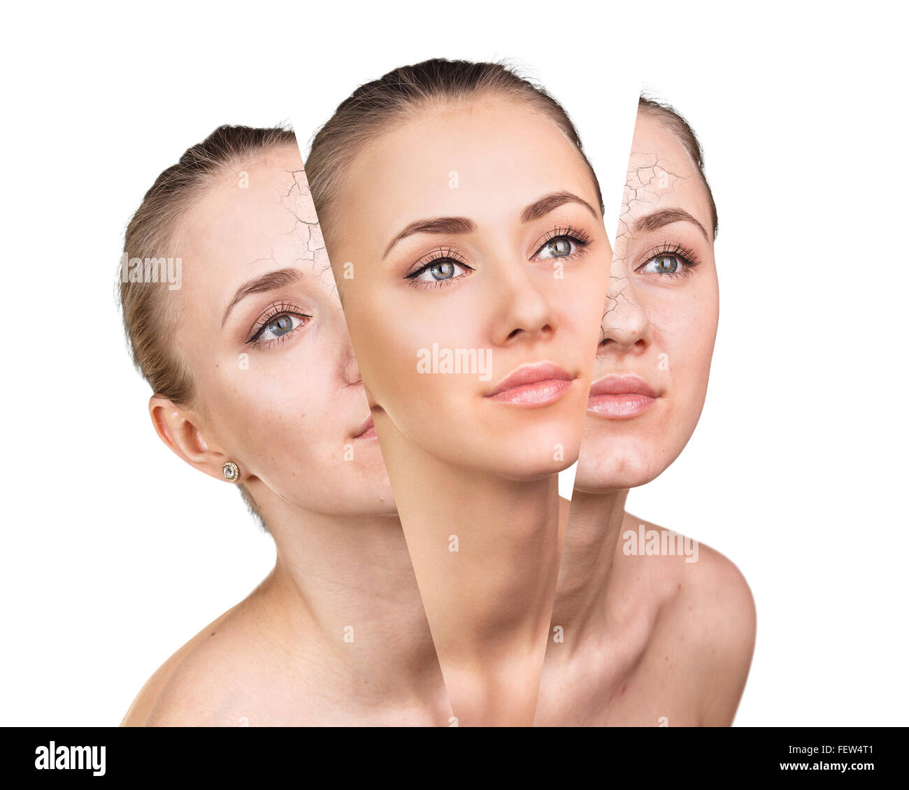 Beauty Concept Before And After Contrast Stock Photo