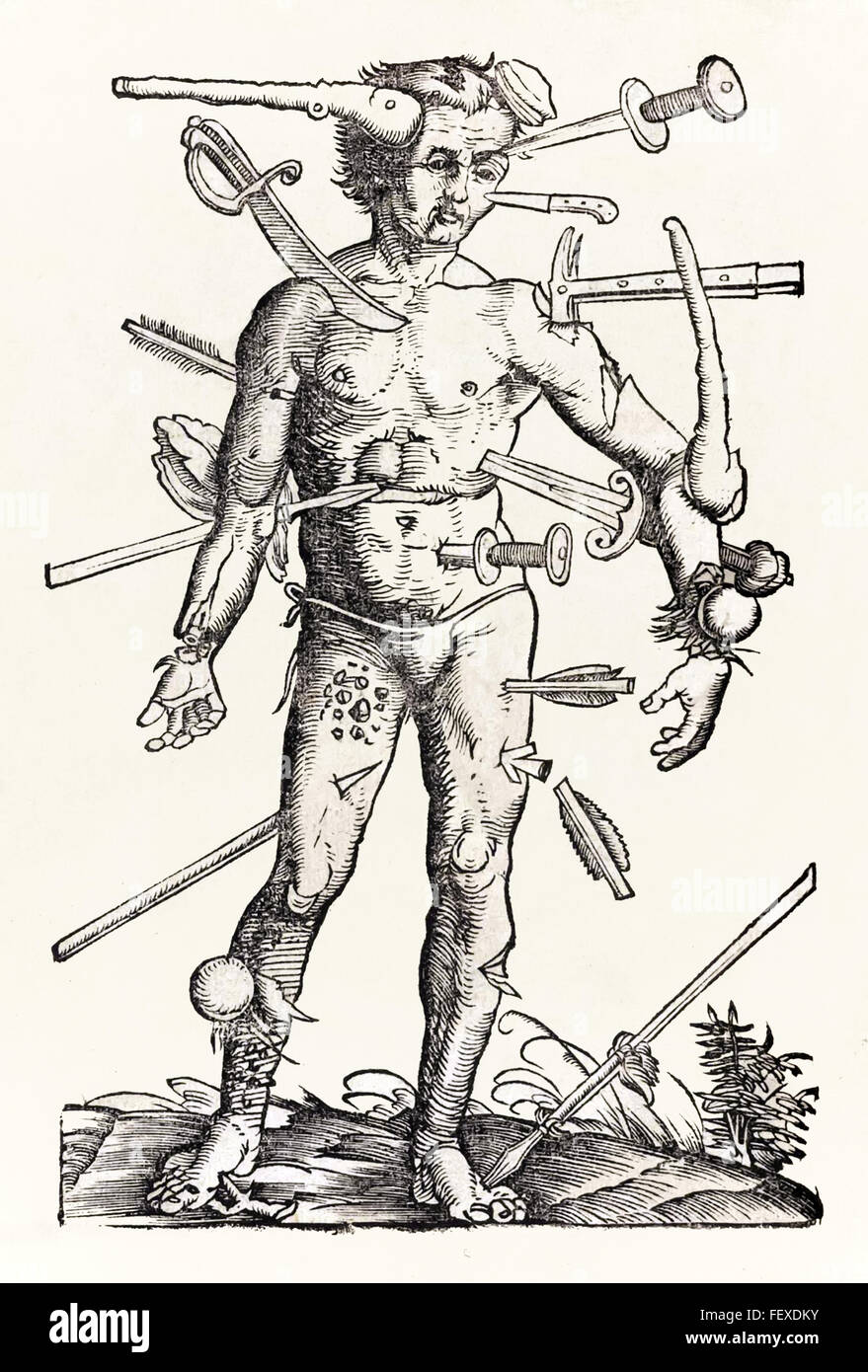 Wound Man woodcut attributed to Hans Wechtlin from German surgeon Hans von Gersdorff's Field book of surgery published - Stock Image