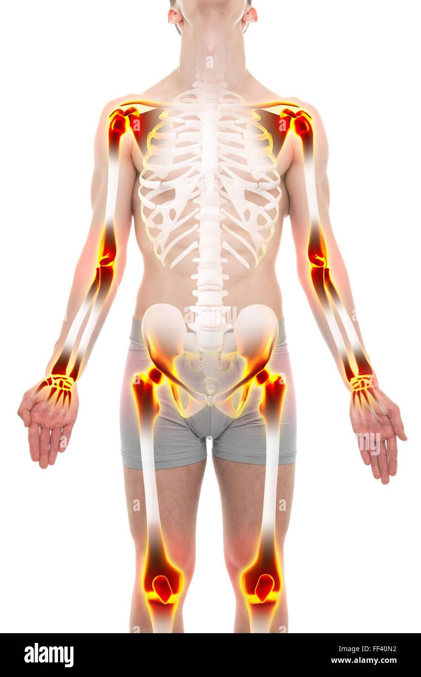 Arthritis Joints Pain Anatomy Male concept - Stock Image