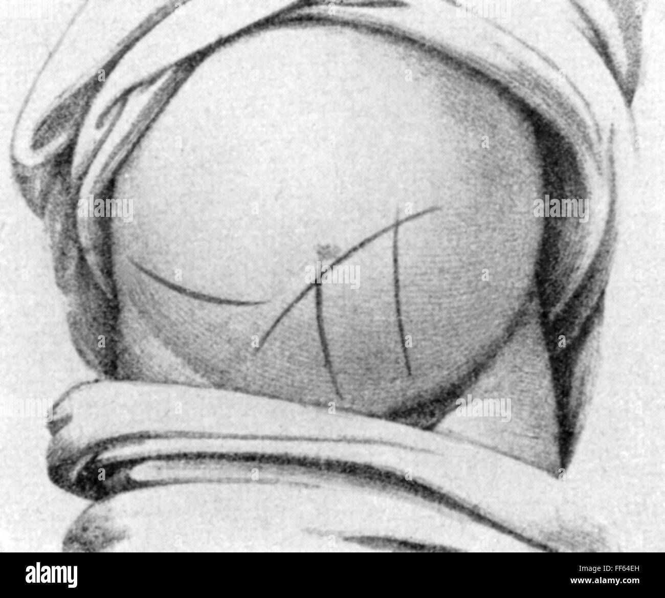 medicine, birth / gynecology, odifferent cuts for Caesarean, copper engraving, out of: Jacques-Pierre Maygrier (1771 - Stock Image