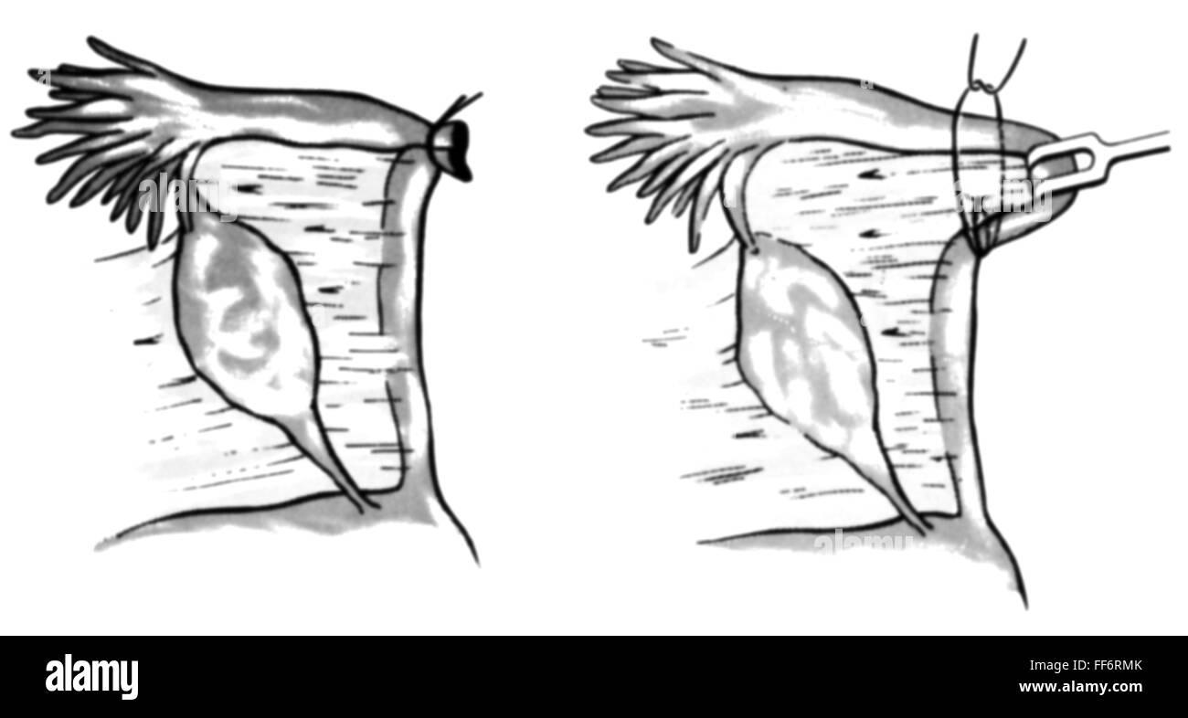 tubal ligation stock photos tubal ligation stock images. Black Bedroom Furniture Sets. Home Design Ideas