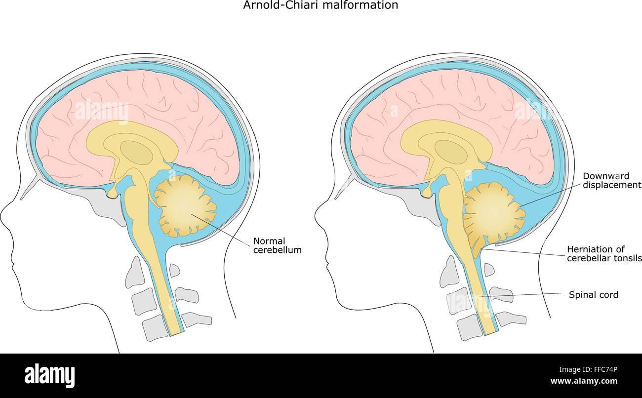 brain malformation in child: Arnold-Chiari malformation - Stock Image
