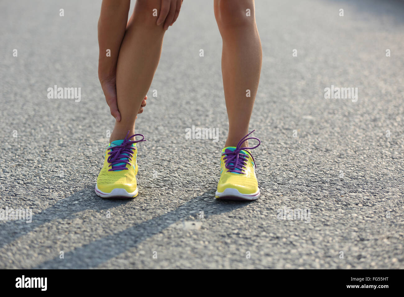 young woman runner with injured legs on city road - Stock Image